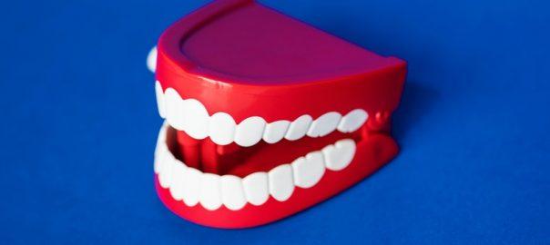 zobni-implantati